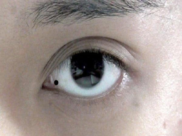 Nốt ruồi trong mắt nói lên điều gì ở con người?
