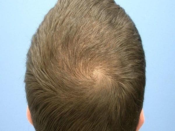 Xem tướng xoáy tóc đoán vận mệnh, tính cách con người?